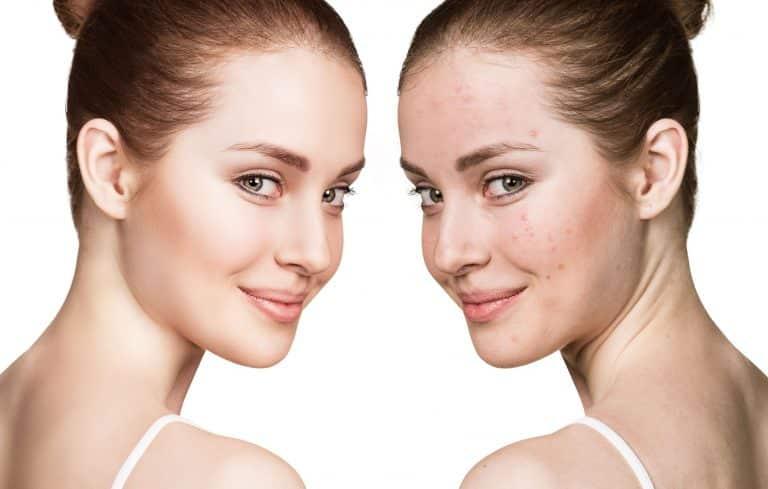 Teen Treatments Clean Face